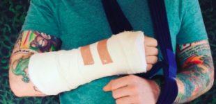 ed-sheeran-lesion